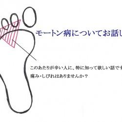 足の裏・指のあたりが痛い。「モートン病」にピンッときますか?