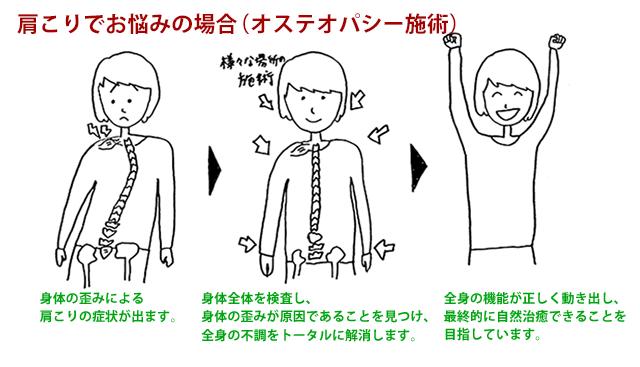 肩こりでお悩みの場合(オステオパシー施術)のイメージ